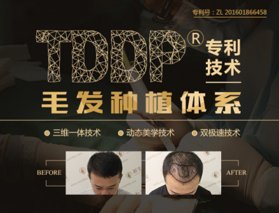 TDDP植发案例